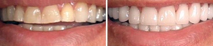 Dentistry Bite Reconstruction & Porcelain Crowns & Bridges