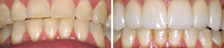 Dentistry Bite Reconstruction & Porcelain Crowns