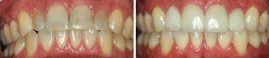 Dentistry Veneers