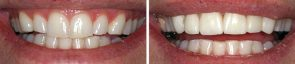 Dentistry Porcelain Crowns
