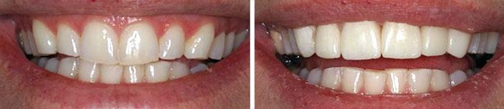 Dentistry Porcelain Crowns