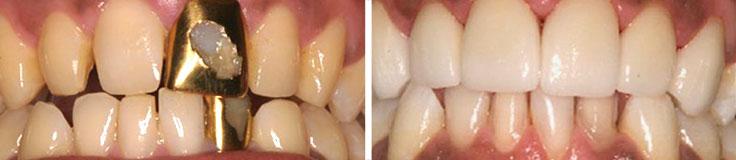 Dentistry Porcelain Crowns & Veneers