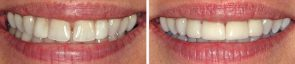 Dentistry Diastema Closure & Porcelain Crowns