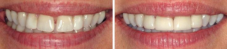 Dentistry Diastema Closure & Porcelain Crowns