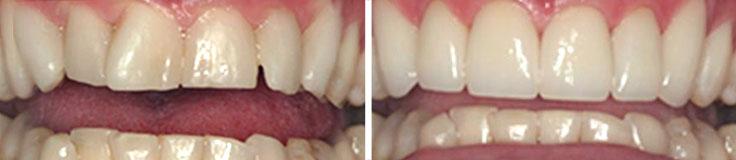 Dentistry Invisalign & Porcelain Veneers