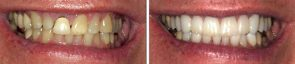 Dentistry Porcelain Crowns & Whitening
