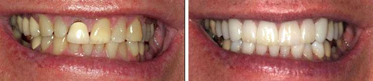 Dentistry Porcelain Crowns & Whitening