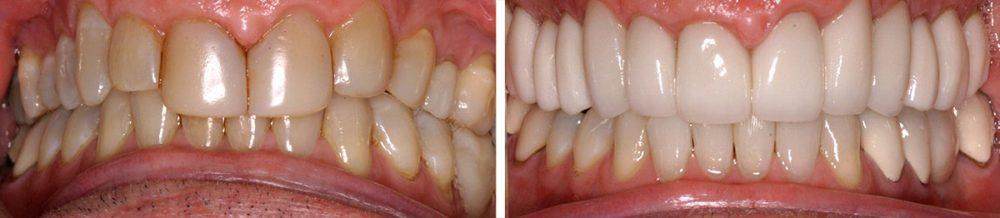 Dentistry Veneers & Crowns