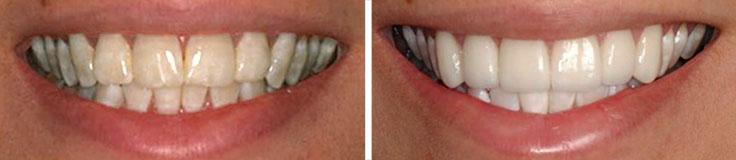 Dentistry Porcelain Veneers & Whitening
