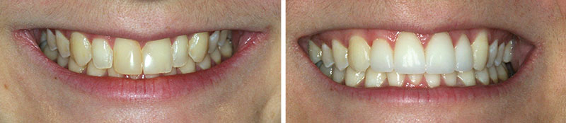 Dentistry Porcelain Veneers